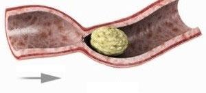 Перистальтика кишечника 2